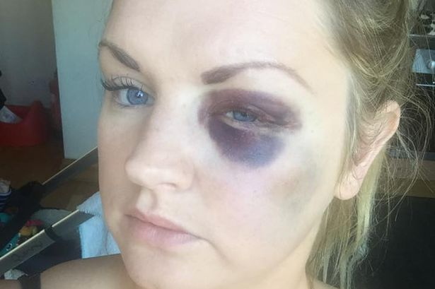 Bridesmaid Samantha Dewar was punched by her best friend's new husband at his wedding - and ended up with a black eye and broken cheekbone.