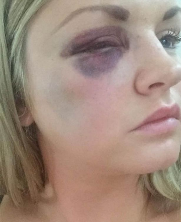 One of the pictures presented at court show a very bruised Samantha Dewar. Image: Manchester Evening News.